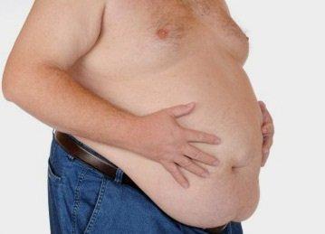 Potosinos con severos problemas de obesidad; especialista